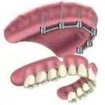 Stegprothese im zahnlosen Oberkiefer